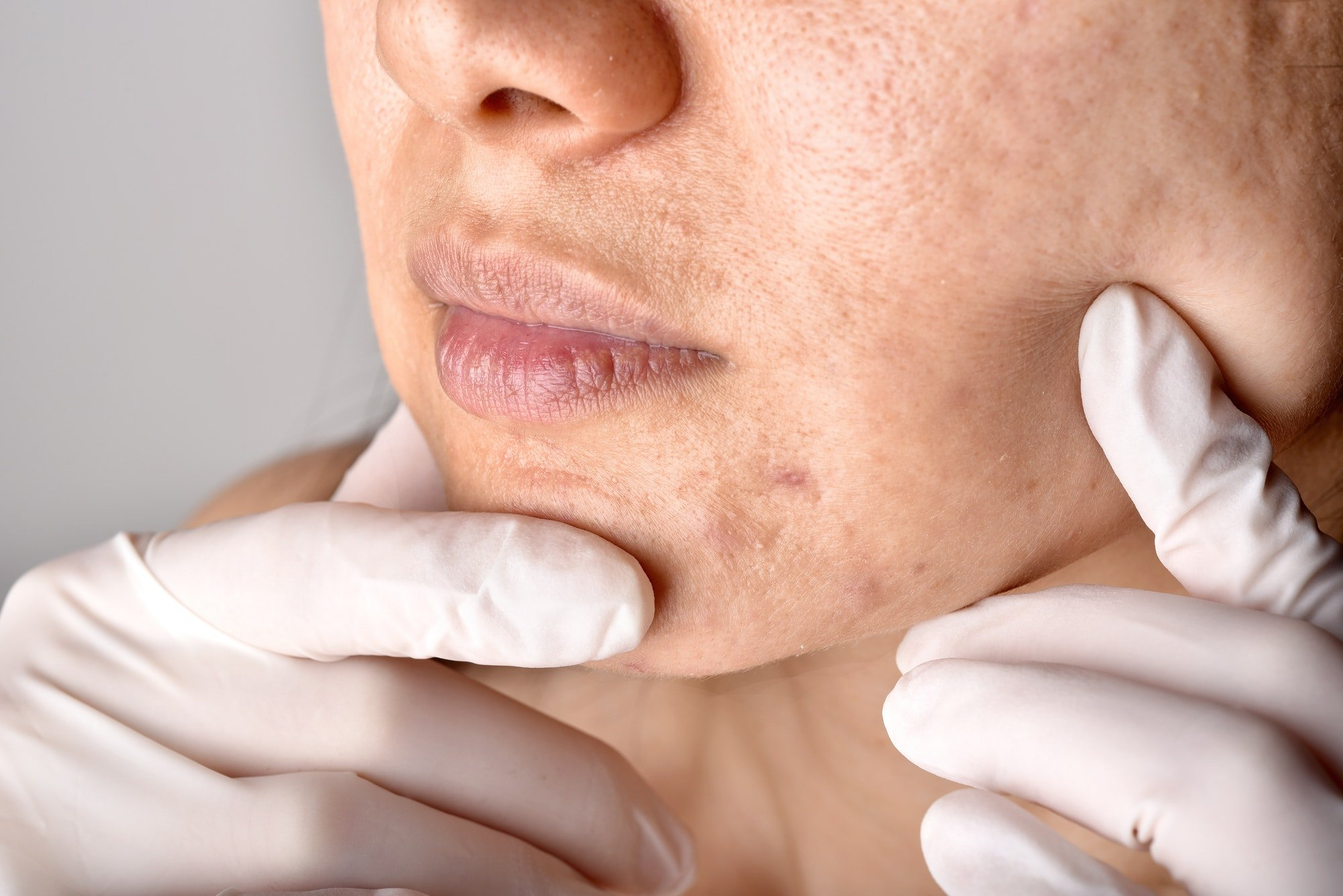Doctor or Dermatologist hand exam patient face